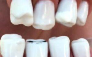 Nagels die op tanden lijken